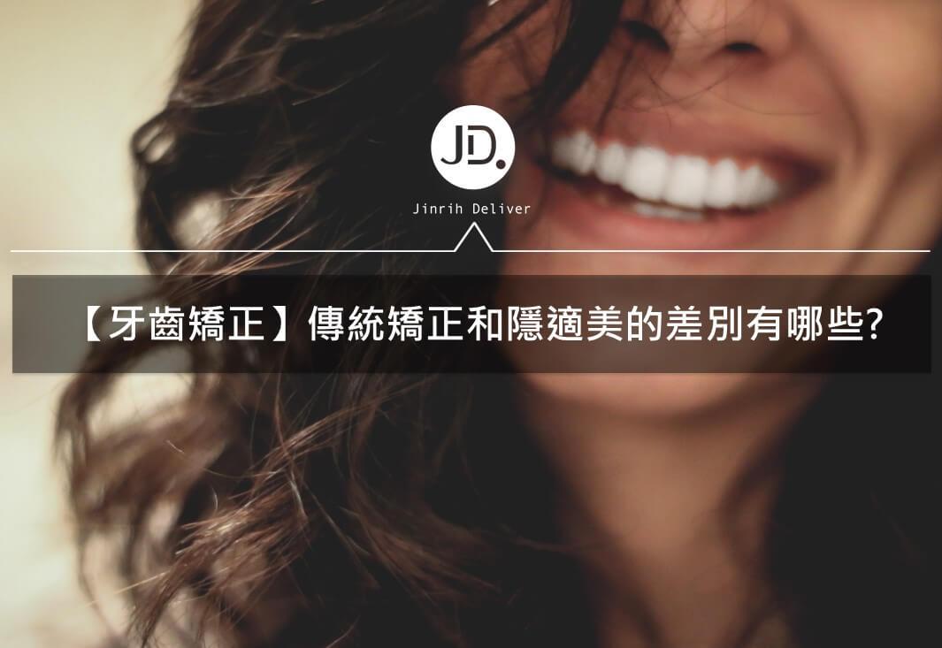 【牙齒矯正】傳統矯正和隱適美的差別有哪些?